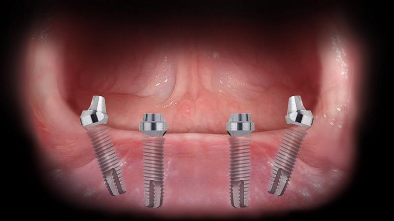 Implantologia_02